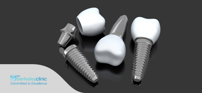 Why you should have dental implants in Glasgow