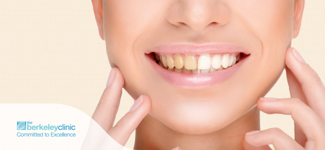 why-is-teeth-whitening-carried-out-by-a-dental-clinician-the-best-option
