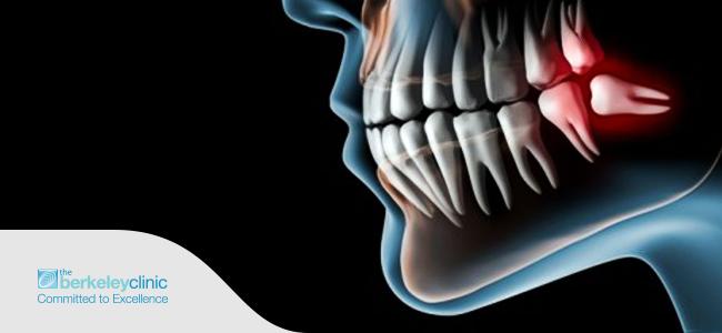https://www.berkeleyclinic.com/blog/wp-content/uploads/2015/12/Wisdom-Teeth-Removal.png