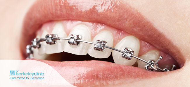 All-You-Need-to-Know-About-Dental-Braces