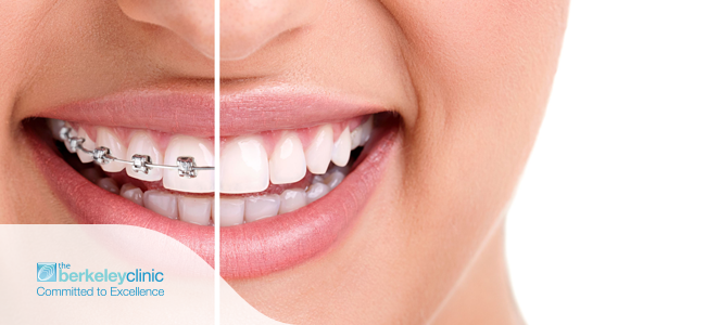 Choosing-the-right-type-of-dental-braces