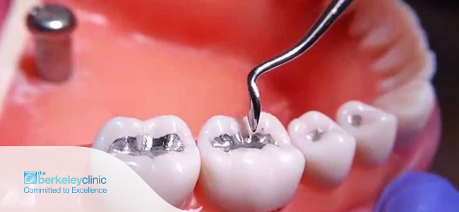 Replace-Your-Amalgam-Dental-Fillings-in-Berkeley-Dental-Clinic-Glasgow