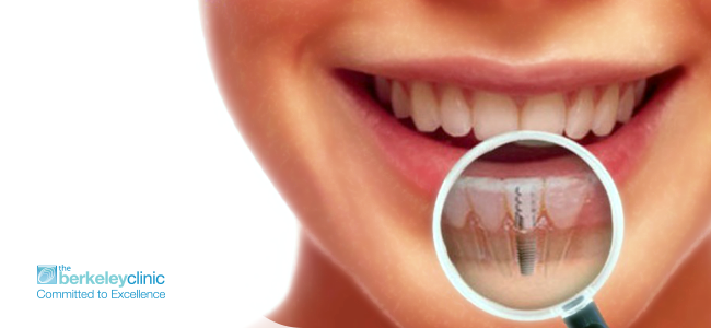 Top-8-Benefits-of-Dental-Implants