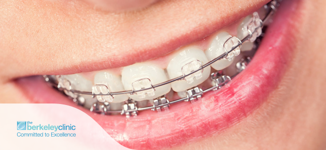 No-Age-Limit-for-Orthodontic-Treatment