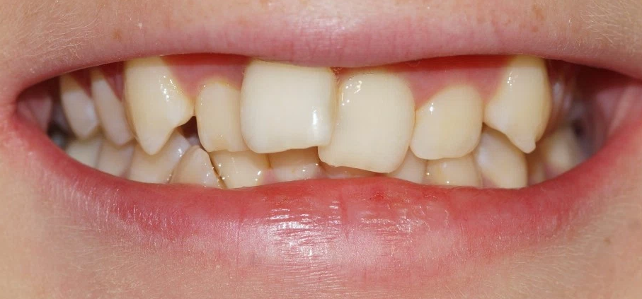 braces glasgow case study three before