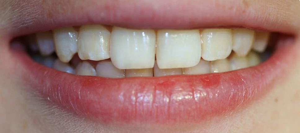 braces glasgow case study three after