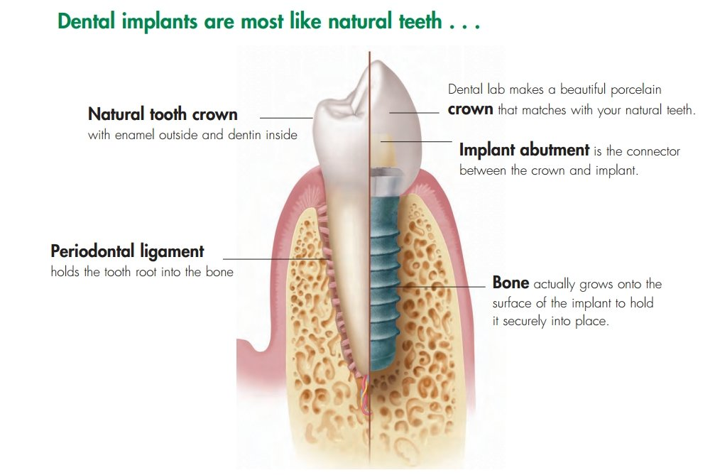 dental imply pic