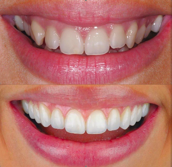 invisalign glasgow before and after