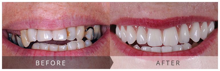 Dental implants glasgow results