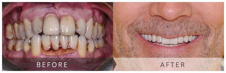 Before and after dental implants Scotland.