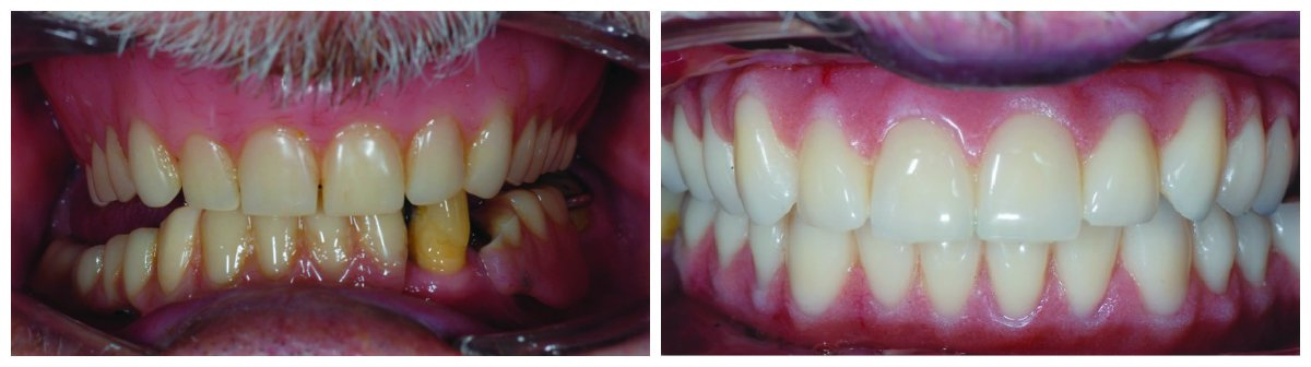 Before and after dental implants Glasgow treatment.
