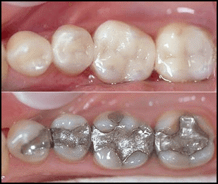 Safe amalgam removal at this Glasgow dentist.