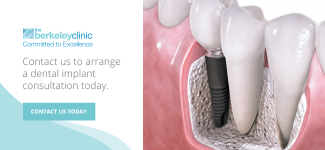 Contact us for your dental implant glasgow