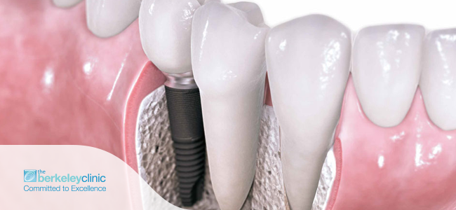 Cosmetic dentistry procedure for dental implants.