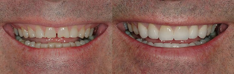 Before and after treatment from cosmetic dentist glasgow.