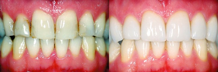 Porcelain veneers before and after from cosmetic dentistry glasgow.