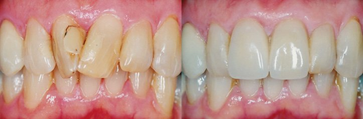 Porcelain crowns before and after from cosmetic dentistry glasgow