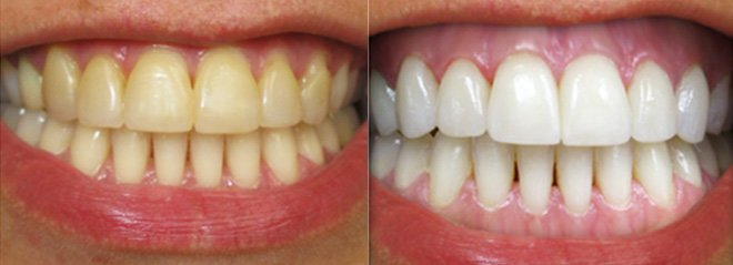 Teeth whitening before and after from cosmetic dentistry glasgow.