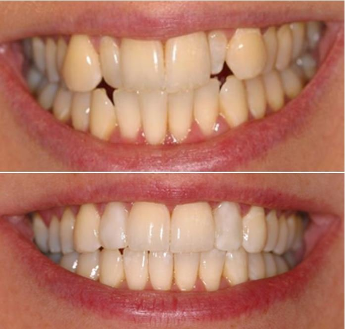Invisalign straight teeth