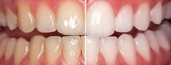 Before and after teeth whitening Glasgow procedure.