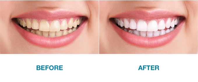 Before and after teeth whitening Glasgow.
