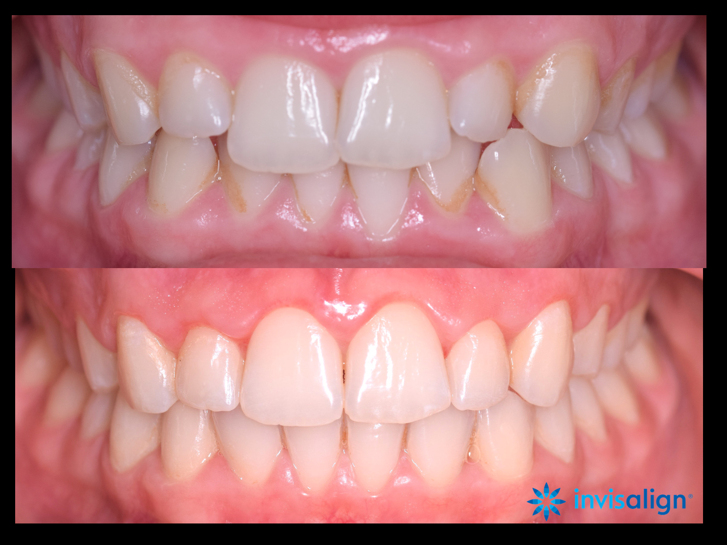 Before and after Invisalign Glasgow treatment.