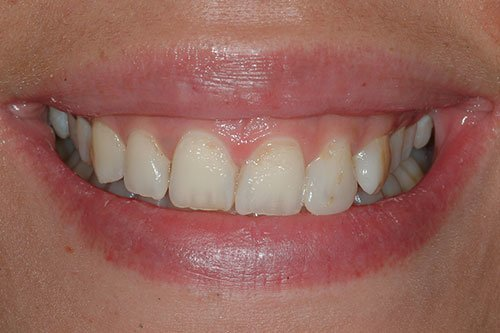 Smile Glasgow before cosmetic dentistry.
