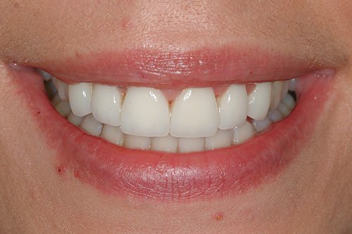 Smile Glasgow after cosmetic dentistry.